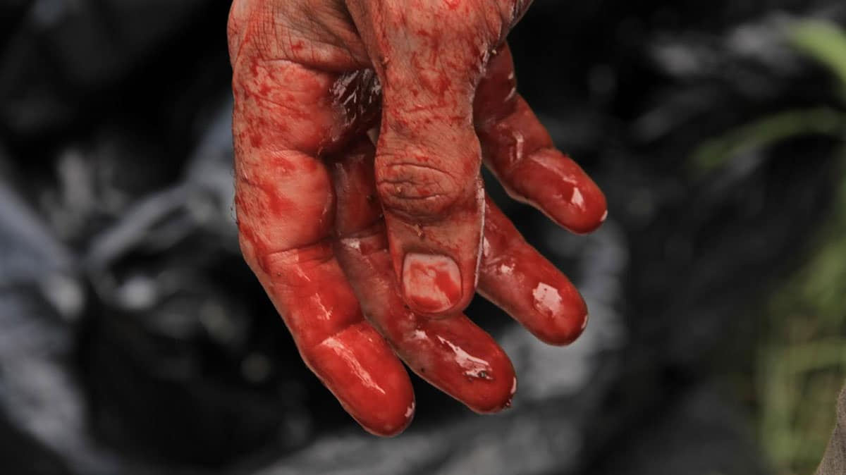 exists bloody hand